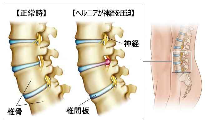 「腰 神経」の画像検索結果
