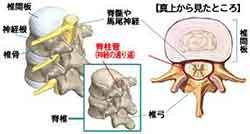 イラスト図解:脊椎・脊柱管・神経